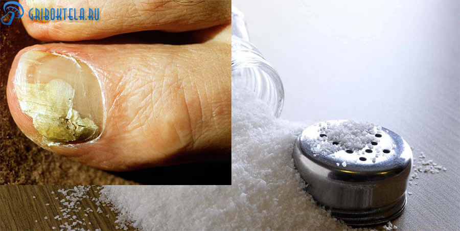 Соль от грибка