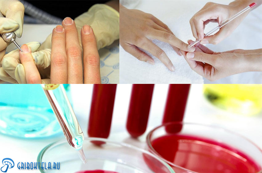 Диагностика грибка ногтей на руках