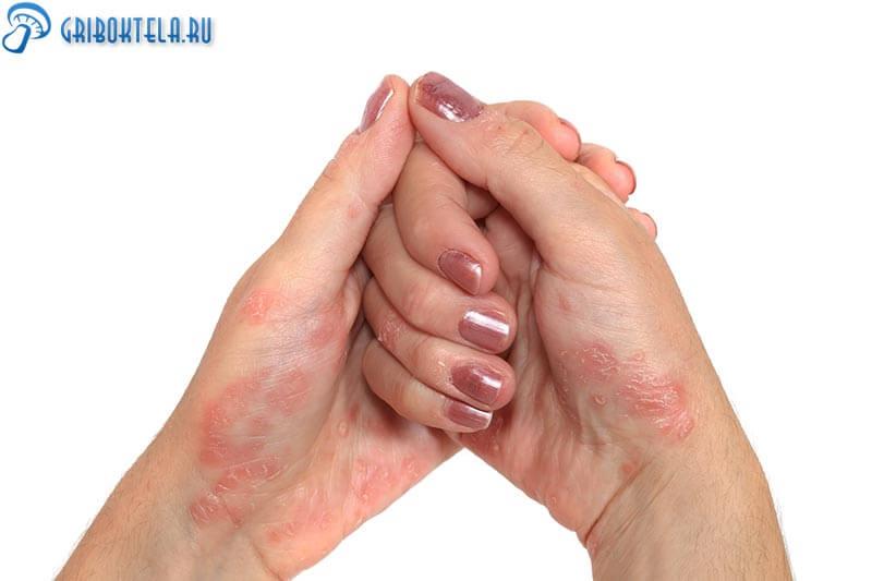 Микоз гладкой кожи рук