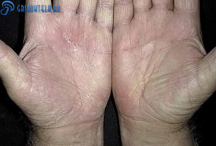Симптомы кандидоза рук
