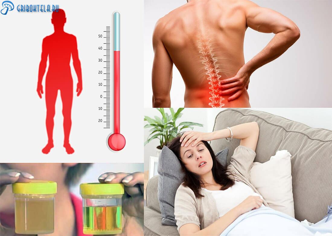 Симптомы Кандидурии