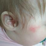 Красные пятна на щеке у ребенка