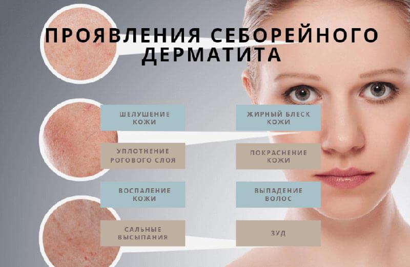 Проявления Себорейного дерматита